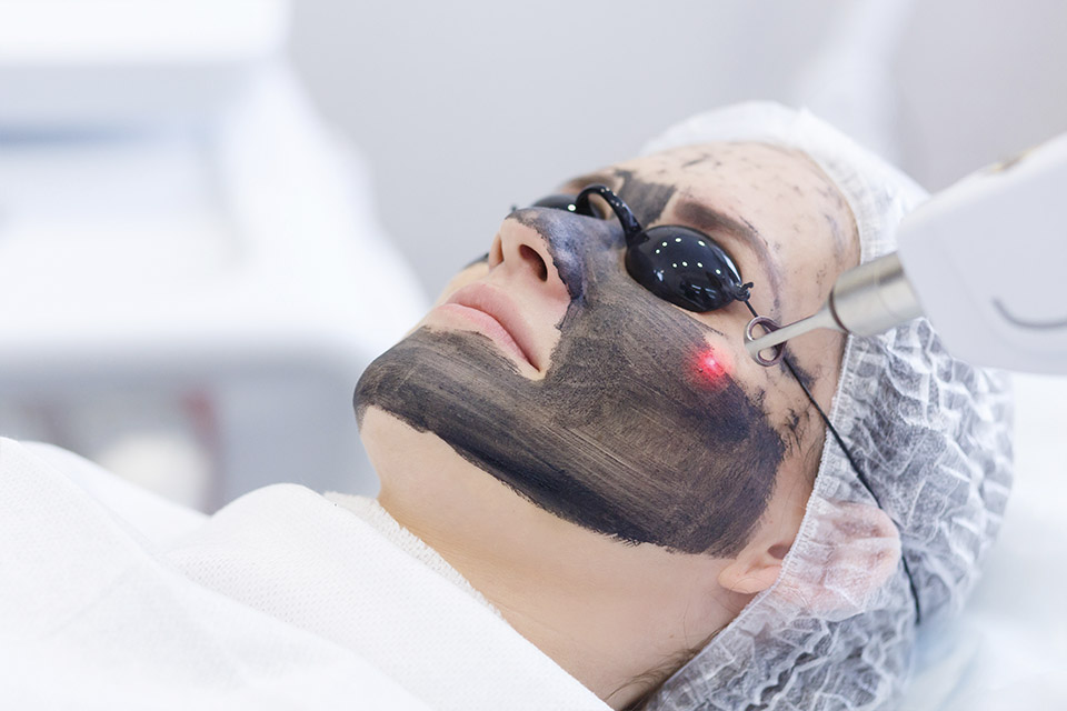 CARBON LASER FACIAL PEEL