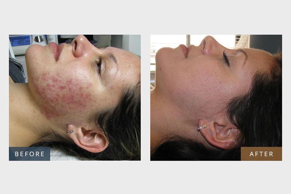 IPL Skin