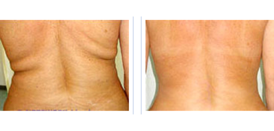 mesotherapy-back-fat-before-after
