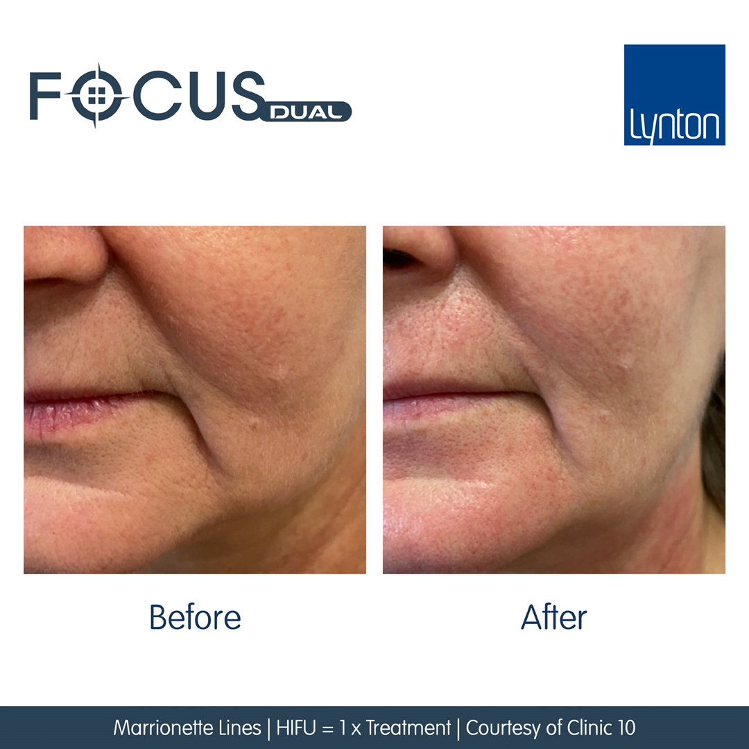Focus-Dual-Before-and-After-Marrionette-Lines-1-HIFU-1-RF-Courtesy-of-Clinic-10-1