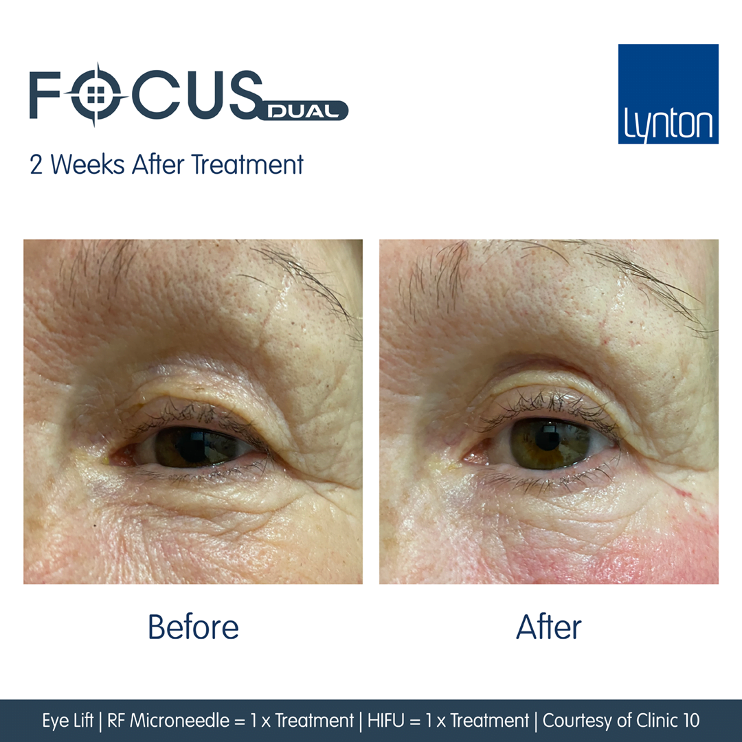 Focus-Dual-Before-and-After-Skin-Laxity-Eye-1-HIFU-1-RF-Courtesy-of-Clinic-10